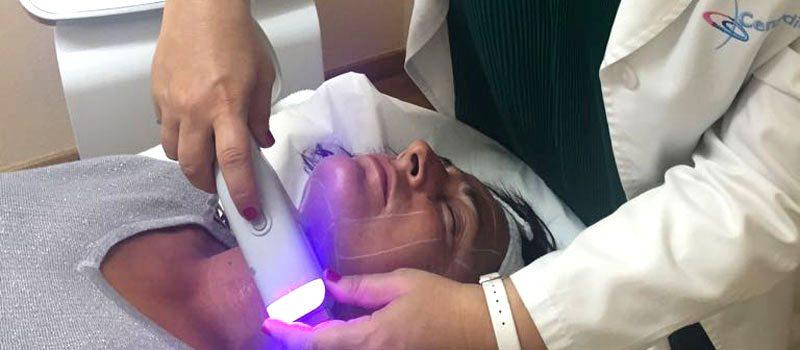 hifu doublo s ultrasonidos