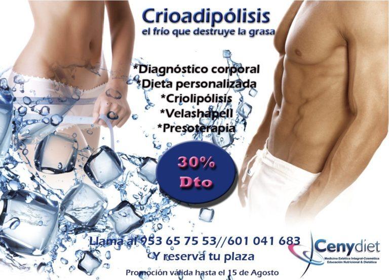 criolipolisis 352019