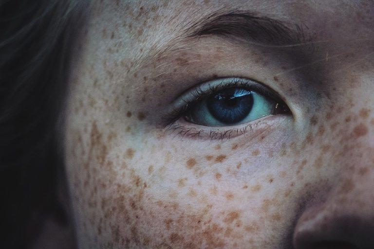 eliminar manchas pecas piel