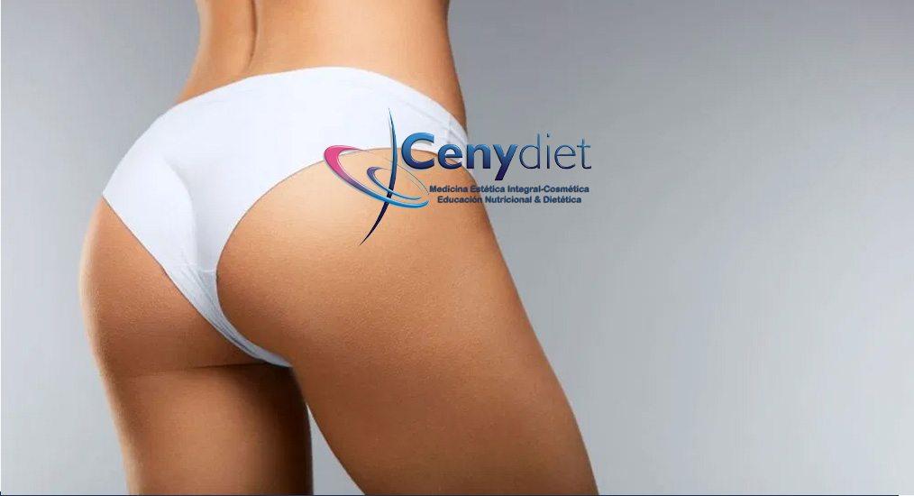 eliminar celulitis en glúteos