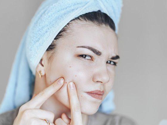 Tratamiento con láser para el acné